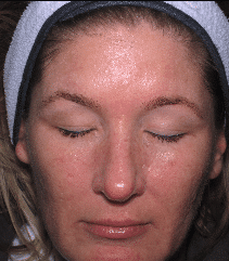 microneedling-after