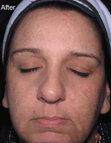 skinmedica-after