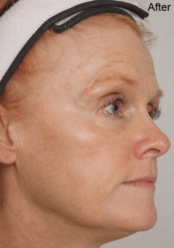 ultherapy-after