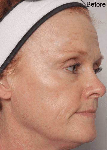 ultherapy-before