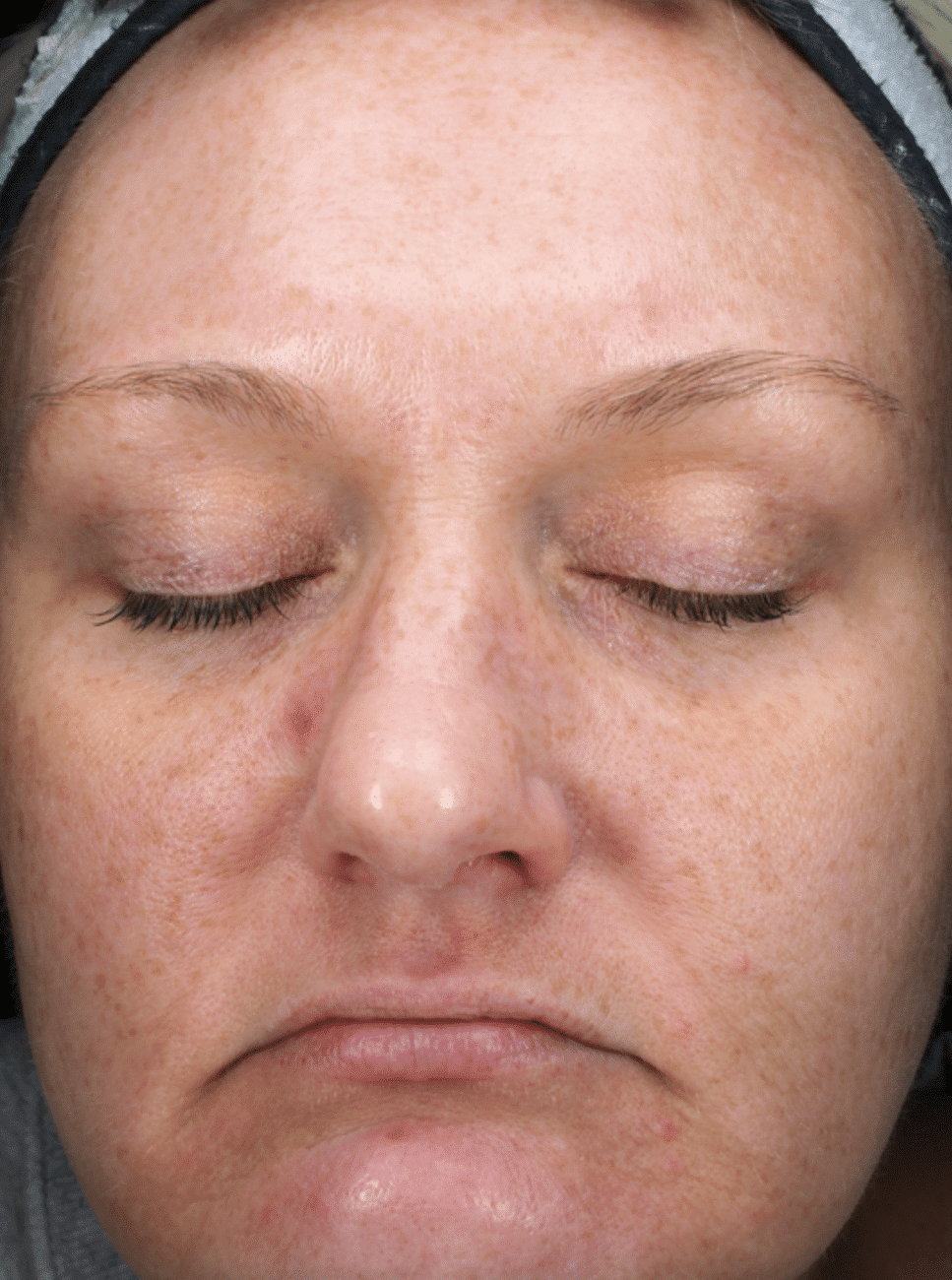 Limelight IPL Photofacial After