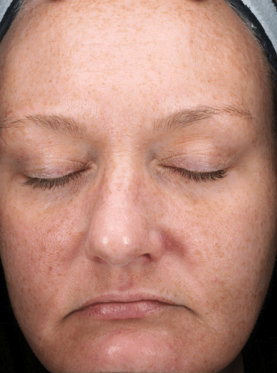 Limelight IPL Photofacial Before