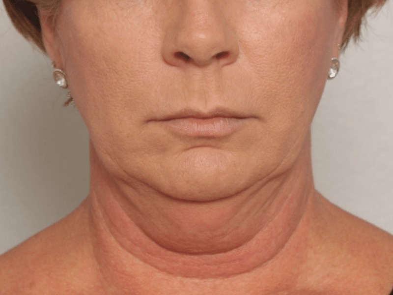 coolsculpting results 1